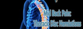Mid Back Pain: Thoracic Disc Herniations