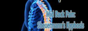 Mid Back Pain: Sheuermann's